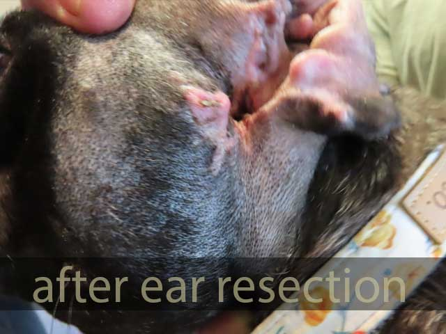 after ear resection